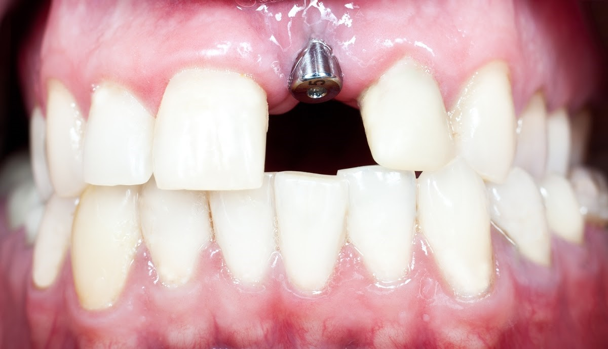 Causes and Consequences of Tooth Loss