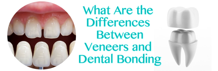 What Are the Differences Between Veneers and Dental Bonding in San Diego?