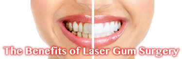 Lasers Gum Treatment