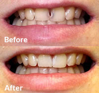 Picture of restored dental work