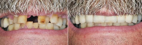 Before and after smile