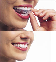 Picture of Invisalign®