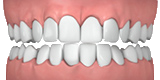 Picture of crowded teeth
