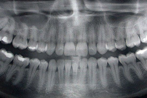 Picture of Wisdom Teeth