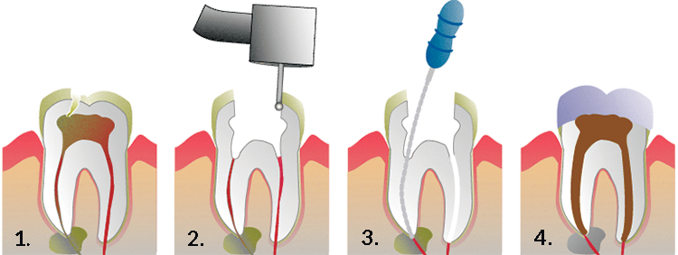 Picture of Root Canal Therapy