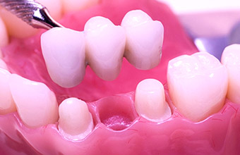 Picture of dental implant closeup