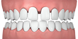 Picture of gaps in teeth