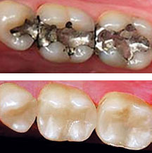 Cosmetic Dentistry - Tooth-colored Fillings